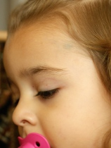 Shows more petechiae around her face (the one in her nose too), but more importantly shows the small bruise in her hairline above her left eye.
